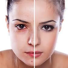 Skin!O - zur Verjüngung - werkt niet - review - radar