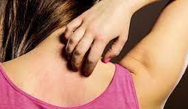 Psoriasis Fn - gebruiksaanwijzing - recensies - bijwerkingen - wat is